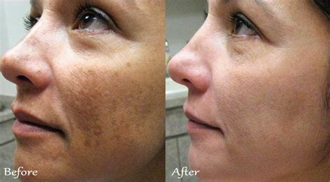 chlorine effects on skin picture 3