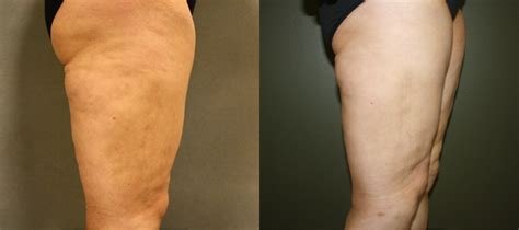 cellulite therapy accent connecticut picture 9