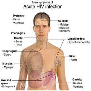 early signs and symptoms of hiv infection in picture 3