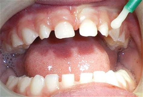 fluoride treatment for teeth picture 17