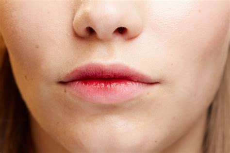 what to do for dry lips picture 7