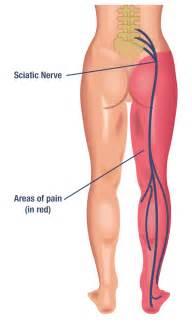 back ache leg pain picture 3