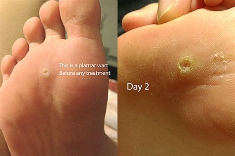diy skin tag removal picture 7