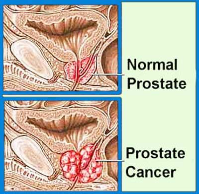 Advanced treatment for prostate cancer picture 18