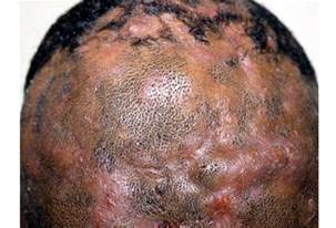 bacterial menigitis and hair loss picture 3