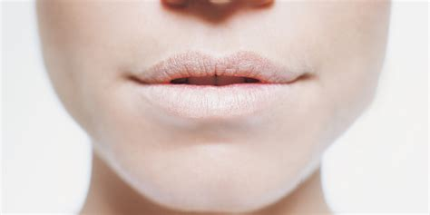 dry lips and skin picture 6