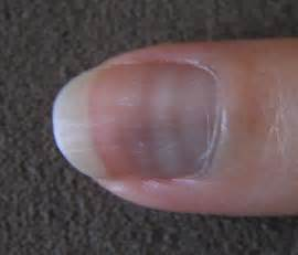 white line in nail picture 8
