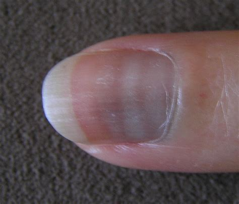 white line in nail picture 15