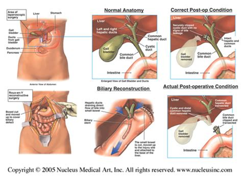 can you have uti after having bladder removed picture 7