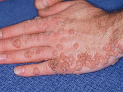 pictures of warts on penis picture 6
