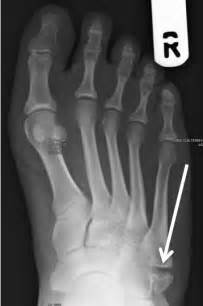 injury to mtp joint of fifth metatarsal picture 7