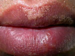 white glands on lips picture 3
