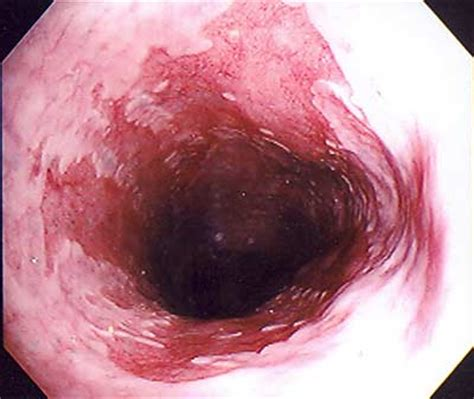 diet related to achalasia picture 6