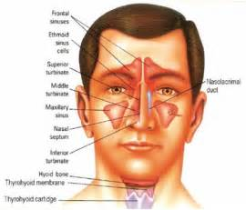 chronic sinusitis and fungus and natural treatment picture 5