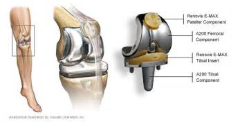 knee total joint replacements picture 10