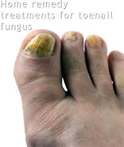 is toe fungus unhealthy picture 15