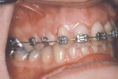 correcting impacted teeth picture 17