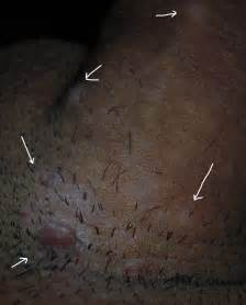 removing hemorrhoids picture 5