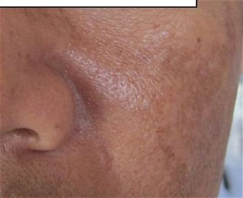 dark patches on skin when drinking picture 6