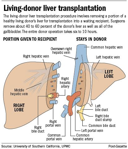 living donor liver transplants picture 1
