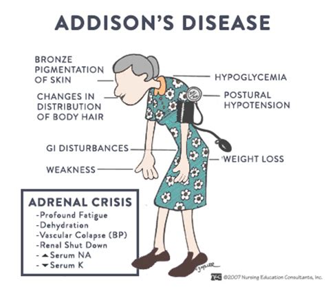 skin symptoms of adrenal disorders picture 2