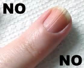 splitting toe nails picture 7