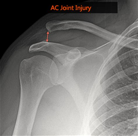 ac joint surgery picture 9