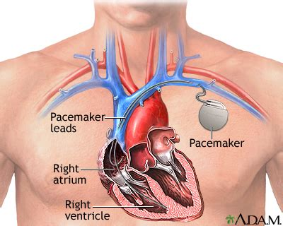weight gain after pacemaker implant picture 10