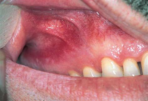idiopathic human tet with teeth decay picture 6