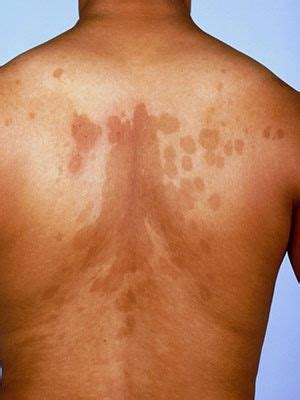 skin condition with boils all over body picture 4