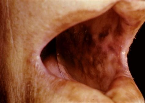 abnormal pigmentation of the skin gray or bronze picture 1