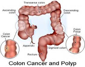 can a colon cleanse cause vaginal bleeding picture 10