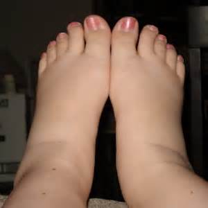 Swollen ankles medical symptoms blood pressure picture 7