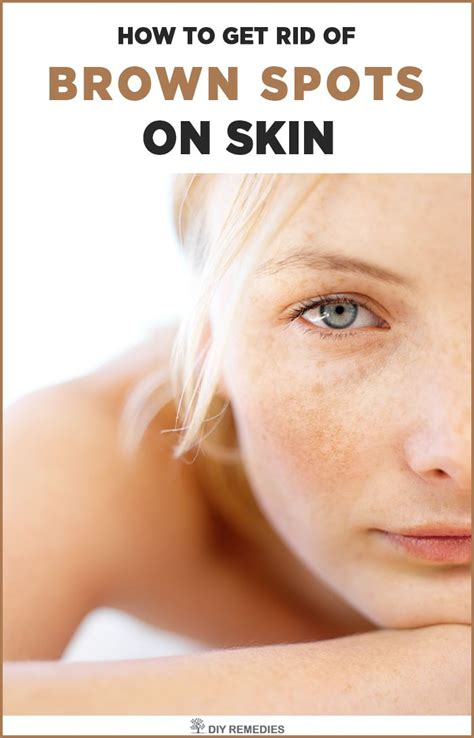 patchy lightened skin in areas picture 7