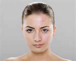 acne breakout symtoms of picture 15