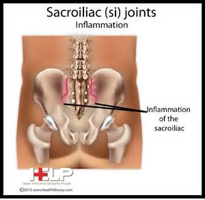 inflammation and sacral joint picture 3