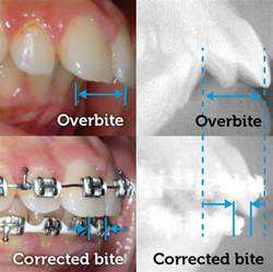 teeth removed to correct overbite picture 11