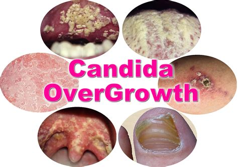 yeast candida infection picture 2