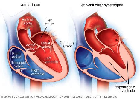 heart muscle about a centimeter thick picture 6