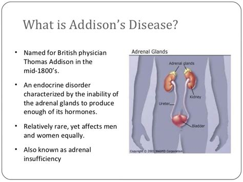 addisons disease, intestinal problems picture 6