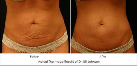 cost to remove stretch mark picture 10
