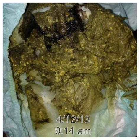 normal colored bowel movement with green mucus picture 6