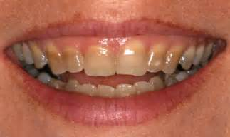 antibiotic discoloring teeth picture 5