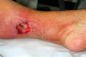 bacterial infection symptoms picture 2