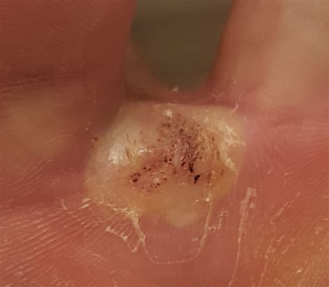 cantharidin wart removal picture 2