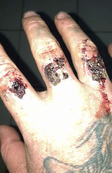 tattoo removal blisters burst picture 2