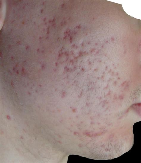 red spots from acne picture 9