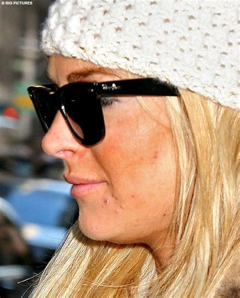 celebs with acne mark skin picture 9