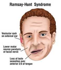 thyroid picture 6
