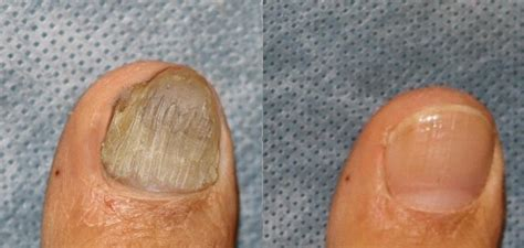 foot laser treatment +ma picture 14